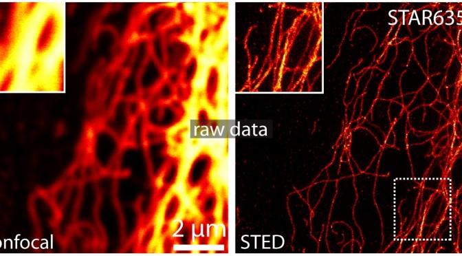 Kémiai Nobel-díjat ért a szupermikroszkópia